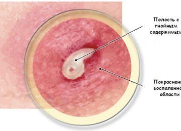 Как можно лечить абсцесс в домашних условиях: клинические аспекты и профилактика