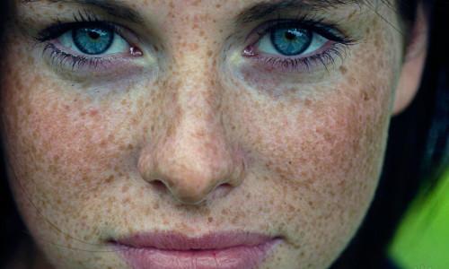 Повышенная пигментация на лице