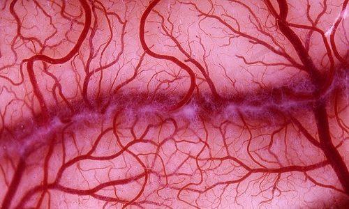 Патология мочевого пузыря, развивающаяся после облучения, сопровождается расширением сосудов внутри органа