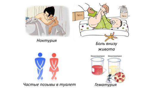 Симптомы цистита у девочек
