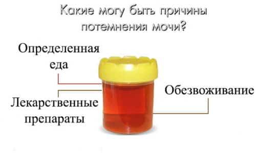 В норме урина человека прозрачная и имеет соломенно-желтый цвет