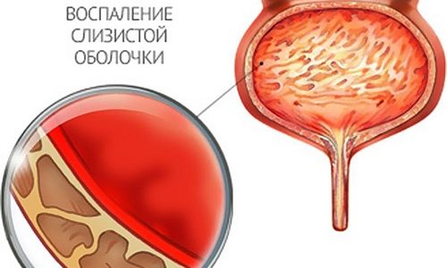 Главной характеристикой цистита является воспаление слизистой оболочки мочевого пузыря