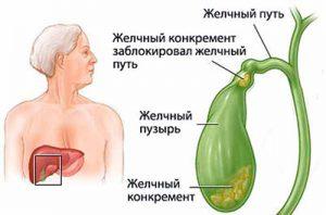 Возможные заболевания желчного пузыря